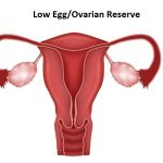 Low Egg/Ovarian Reserve